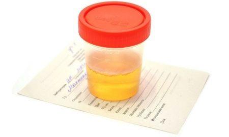Посев мочи на микрофлору, на бактерии при беременности: для чего и как сдавать правильно?