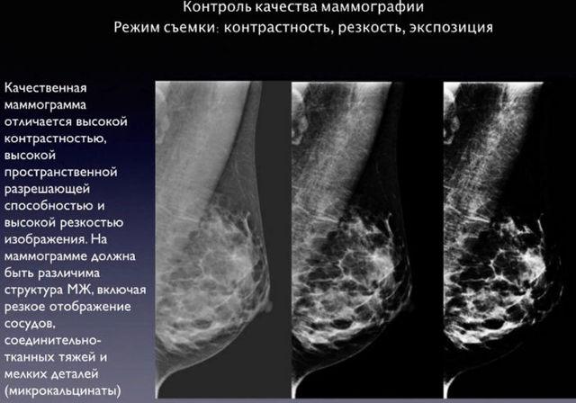 Обследование молочных желез: методы обследования груди, УЗИ молочных желез, маммография