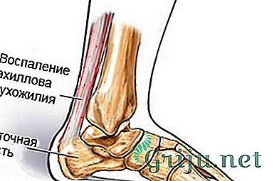 Тендовагинит ахиллова сухожилия: симптомы, лечение, сроки реабилитации