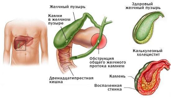 С чем может быть связана постоянная рвота на голодный желудок?