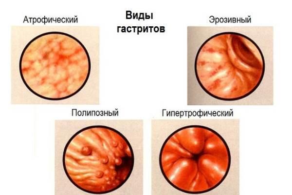Гипертрофический гастрит желудка: что это такое, симптомы, лечение