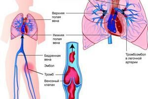Синдром сдавления нижней полой вены у беременных: симптомы и лечение