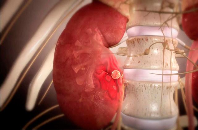 Мочекаменная болезнь: симптомы, причины, диагностика, лечение мочекаменной болезни и ее профилактика