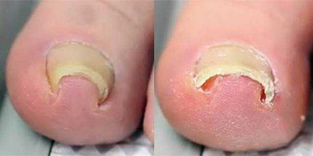 Вросший ноготь на ноге: лечение в домашних условиях, удаление вросшего ногтя, что делать, если врастает ноготь на большом пальце