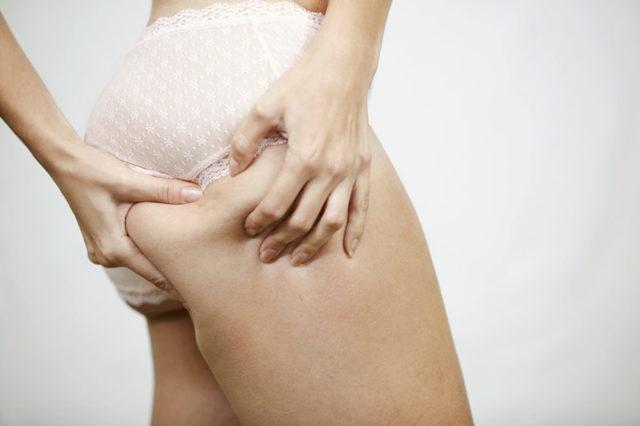 Как избавиться от целлюлита? Какие существуют методы лечения целлюлита?