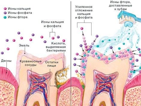 Как бороться с повышенной чувствительностью зубов: причины повышенной чувствительности зубов и методы их устранения