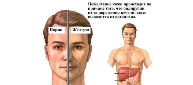 Указывает повышенный билирубин на синдром Жильбера?
