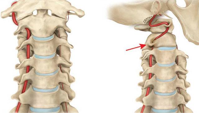 Что такое синдром позвоночной артерии, симптомы и лечение при шейном остеохондрозе