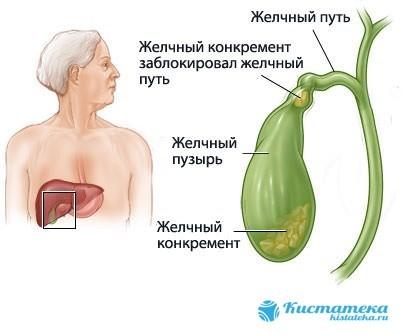 Киста желчного пузыря: симптомы, лечение, профилактика, операция и последствия