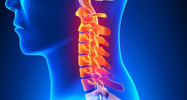 Шейный спондилез: причины, симптомы, лечение, прогноз