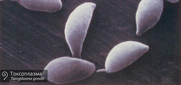 Токсоплазмоз: симптомы, причины и лечение, опасность токсоплазмоза при беременности и анализы на токсоплазмоз
