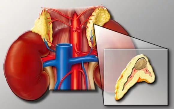 Опухоли надпочечников: симптомы у женщин и мужчин, лечение операция оп удалению