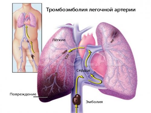 Венозный тромбоз: симптомы, диагностика, причины возникновения и виды тромбозов, лечение, профилактика, опасность тромбов.