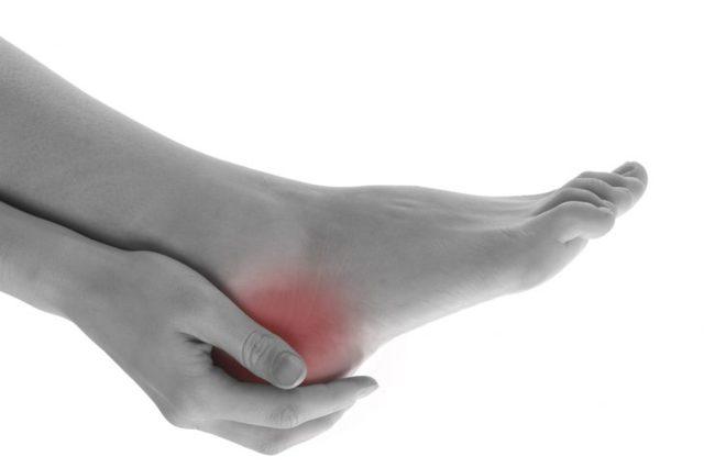 Перелом пяточной кости со смещением и без него: симптомы, лечение, сколько заживает