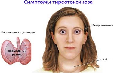 Тиреотоксикоз щитовидной железы: что это такое, симптомы, лечение тиреотоксикоза