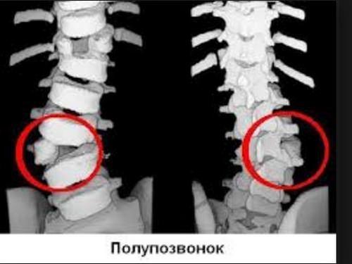 Клиновидные позвонки в грудном и поясничном отделение у детей и взрослых: лечение