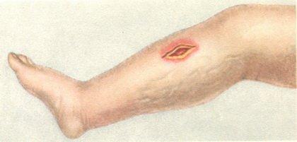 Газовая гангрена: симптомы и лечение, возбудитель гангрены, диагностика