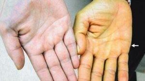 Лекарственный гепатит: причины, симптомы, лечение, профилактика, риски