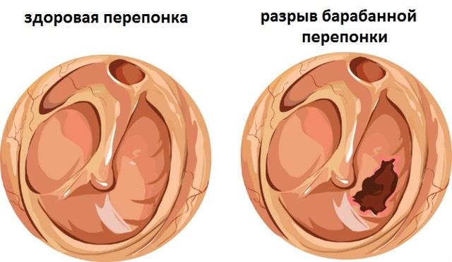 Разрыв барабанной перепонки: симптомы, лечение и последствия