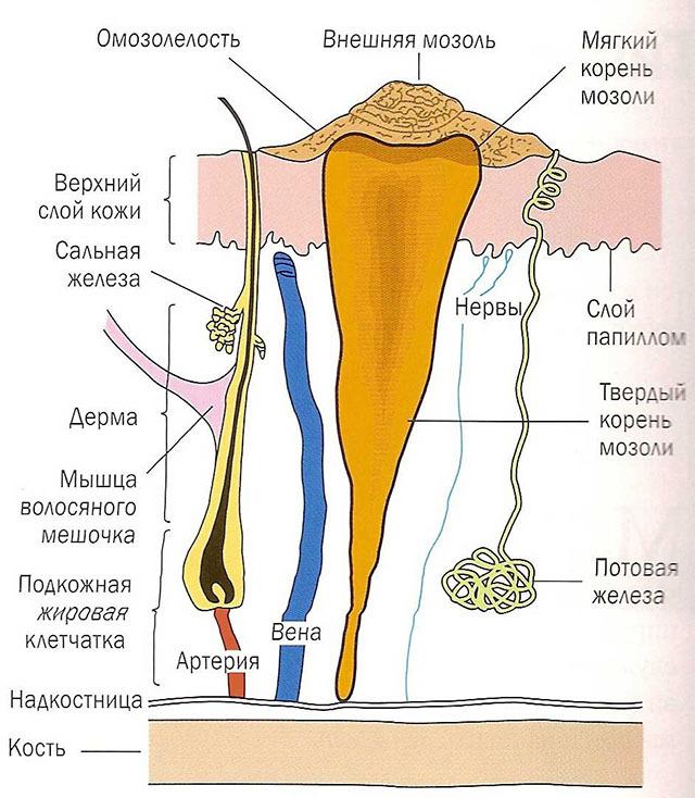 Лечение стержневых мозолей, удаление сухой мозоли со стержнем