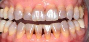 Отбеливание зубов opalescence boost, домашнее отбеливание зубов с капами: что это
