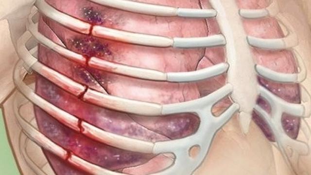 Как определить перелом ребра по рентгеновскому снимку: расшифровка рентгена