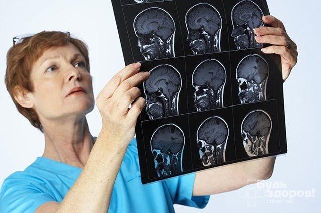 Менингит: симптомы, классификация, причины возникновения, лечение и возможные осложнения
