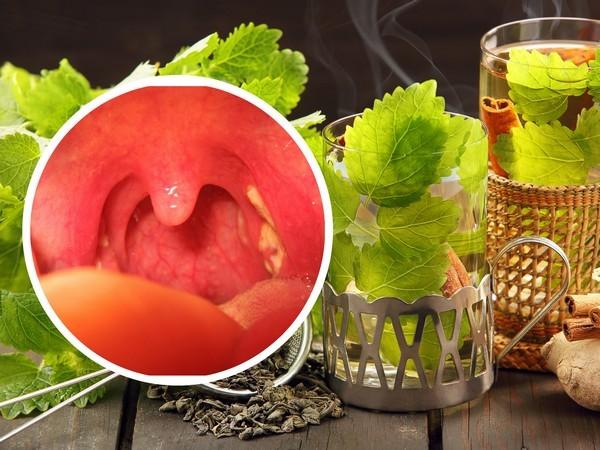 Лечение фарингита народными средствами: полоскания, ингаляции, небулайзер при фарингите