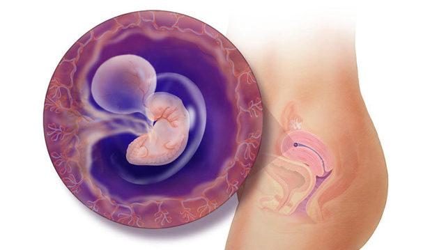Хламидиоз при беременности: последствия для ребенка, симптомы и признаки, лечение