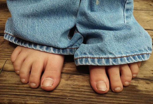 Сухая гангрена нижних конечностей, пальца ноги, когда развивается, сколько живут