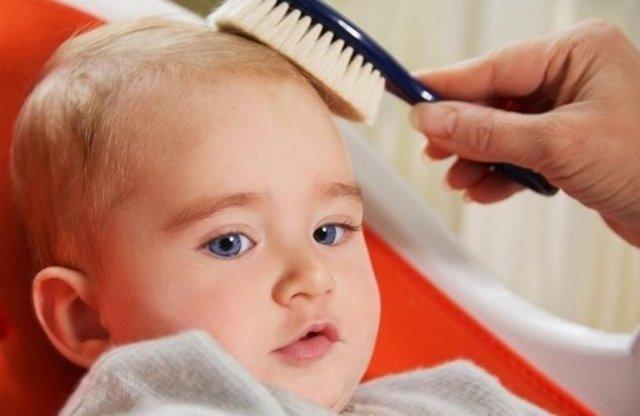 Себорейный дерматит у грудничка: как убрать корочки на голове у ребенка