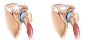 Разрыв связок коленного сустава: симптомы, лечение, реабилитация