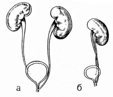 Эктопия устья мочеточника: что это, диагностика, симптомы и лечение