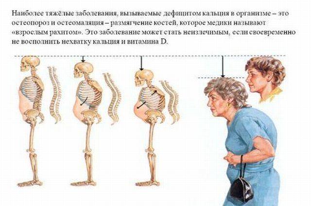 Остеомаляция: симптомы и лечение у взрослых и детей, отличие от остеопороза