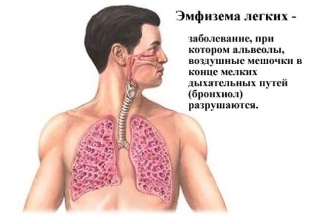 Как лечить бронхит в домашних условиях: лекарства от бронхита, антибиотики, муколитики