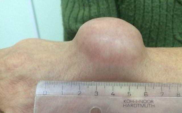 Гигрома: симптомы, лечение гигромы без операции, операция при гигроме сустава