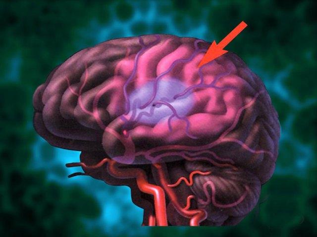 Внутриутробная гипоксия плода: причины, симптомы и последствия гипоксии