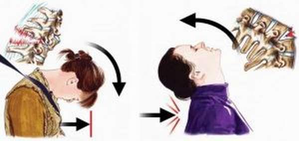 Перелом шейного отдела позвоночника: признаки, первая помощь при повреждении спинного мозга