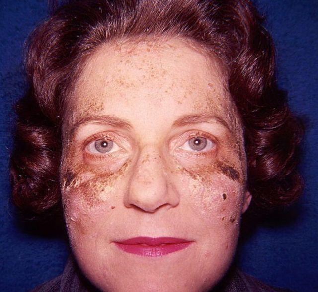 Буллезный пемфигоид Левера: что это, симптомы, лечение, фото у детей и взрослых