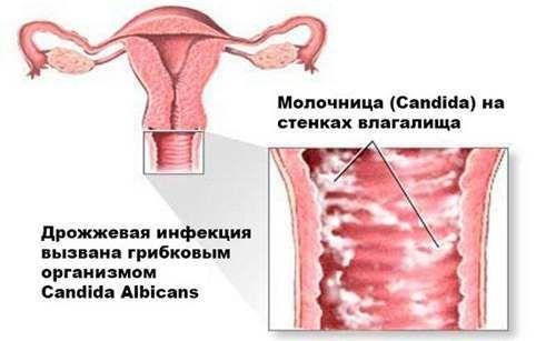 Флюкостат при молочнице: как принимать женщинам и мужчинам, инструкция по применению