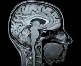 Тромбоэмболия сосудов головного мозга: причины, признаки развития, методы лечения и профилактики