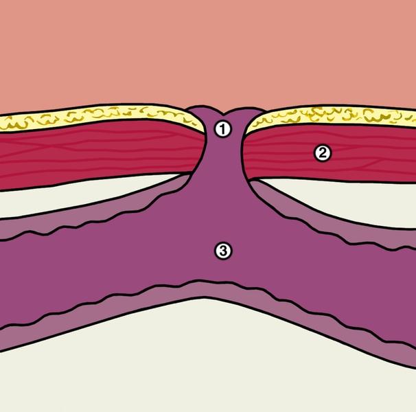 Желудочный свищ – что это такое, причины, симптомы, лечение