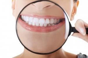 Профессиональное отбеливание зубов zoom 3 и zoom 4: в чем разница