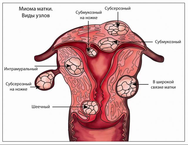 В каких случаях удаляют матку — Твой гинеколог