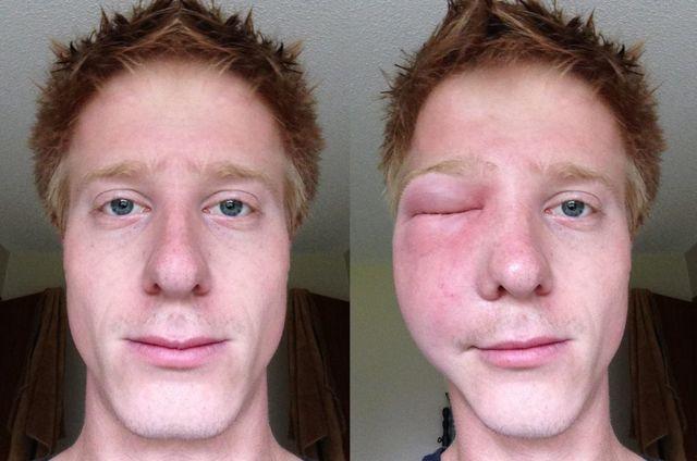 Что делать, если укусил шершень: последствия укуса шершня и первая помощь в домашних условиях