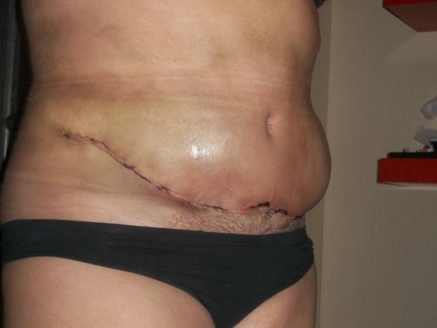 Признаки воспаления хирургического шва