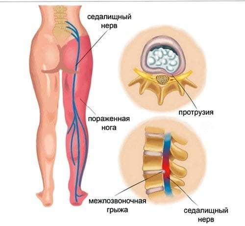 Воспаление седалищного нерва: симптомы и лечение ишиаса в домашних условиях