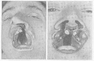 Волчья пасть у человека: причины, операция, фото дои после