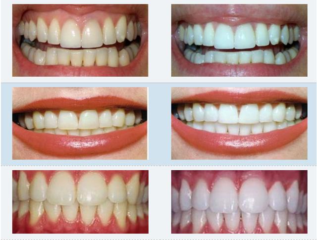 Отбеливание зубов зум недостатки
