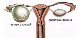 Почему увеличивается живот и чем может быть вызвано уплотнение в животе у женщин